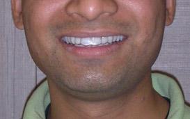 Braces care & Instructions at Dr  Vora's Dental Care