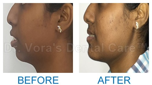 Surgical jaw correction